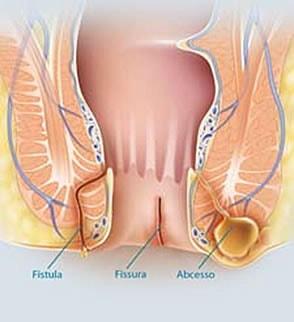 Fissurectomia