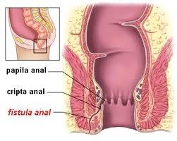 Fístula Anal