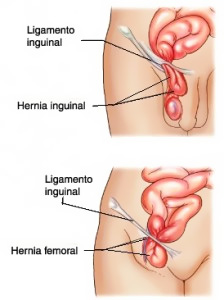 hernia-abdominal-04