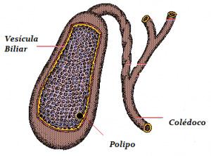 polipo-de-vesicula