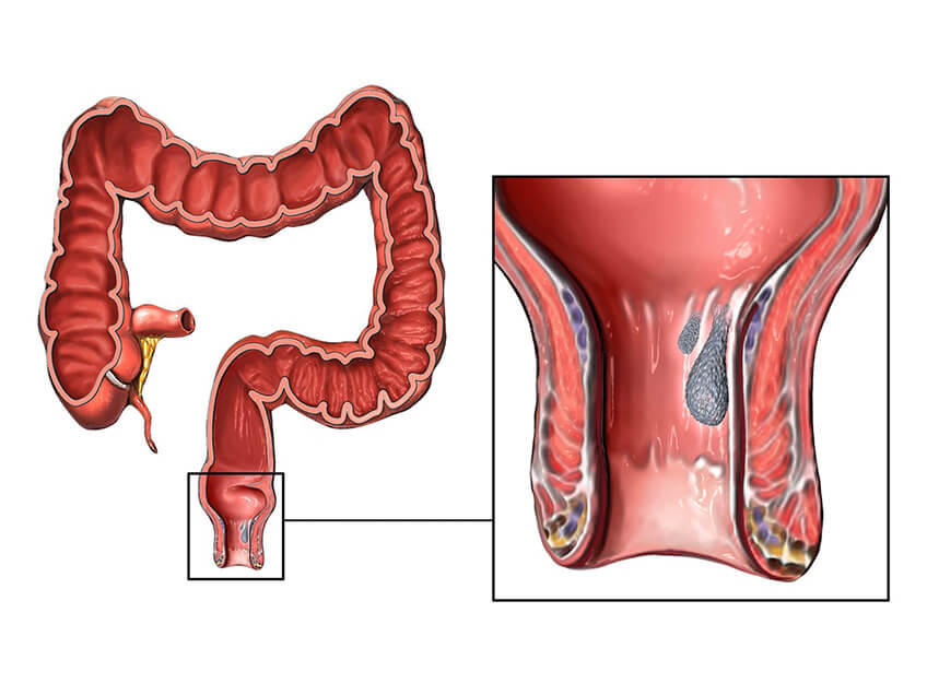 sangramento nas hemorroidas: Imagem ilustrativa de hemorroida
