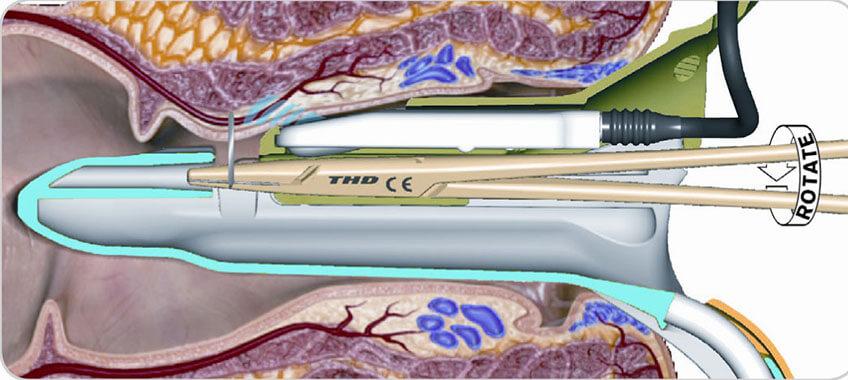 cirurgia de hemorroida: procedimento THD
