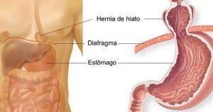 hernia-de-hiato