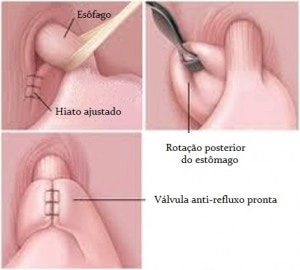 hernia-e-refluxo