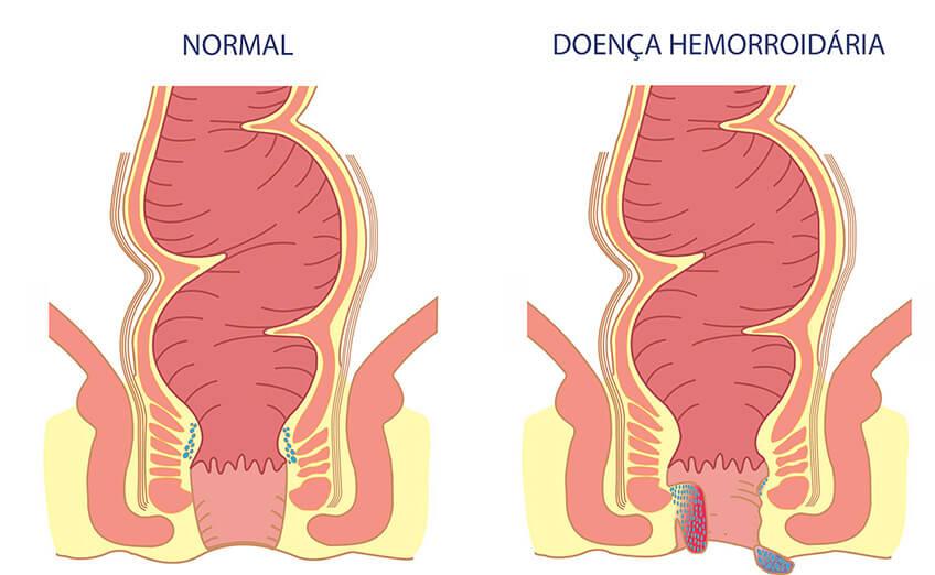 médico especialista em tratar hemorroida: imagem ilustrativa da doença